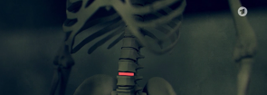 """medizinprodukte (Bericht: """"Das gefährliche Geschäft mit Implantaten"""")"""